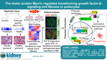 The motor protein Myo1c regulates transforming growth factor-β