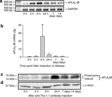 Upregulation of group ib secreted phospholipase a2 and its m type figure 1 ccuart Images