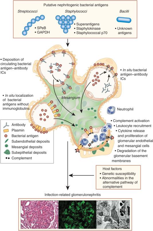 group a strep infection and glomerular nephritis relationship