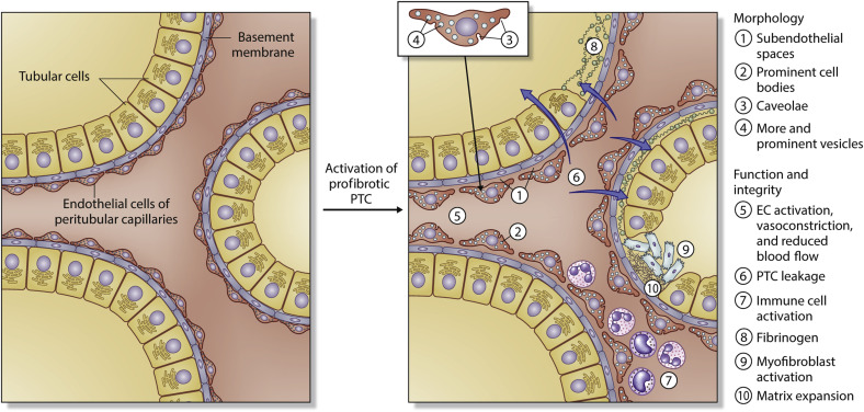 Peritubular capillaries: an important piece of the puzzle - Kidney ...