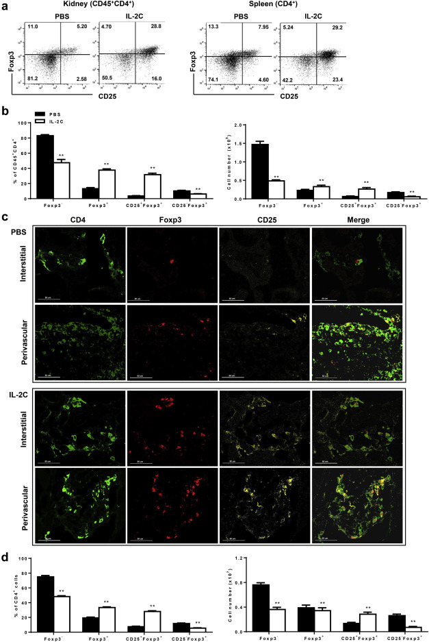 Il 2anti Il 2 Complexes Ameliorate Lupus Nephritis By Expansion Of